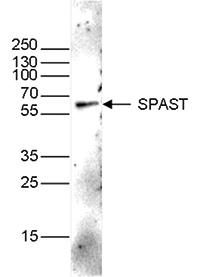 Western blot figure 1