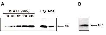 GR Antibody validated in Western Blot