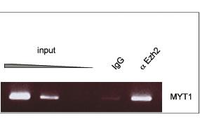 EZH2 Antibody ChIP Grade