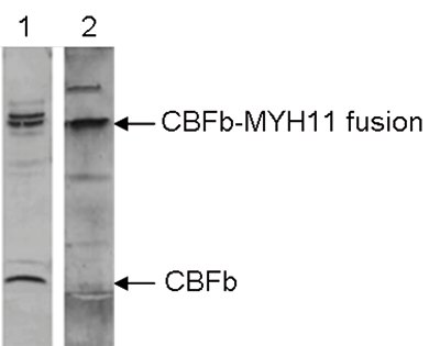 MYH11 Antibody validated in Western Blot