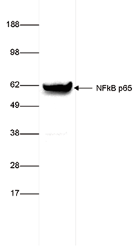 NFKB p65 Antibody validated in Western Blot