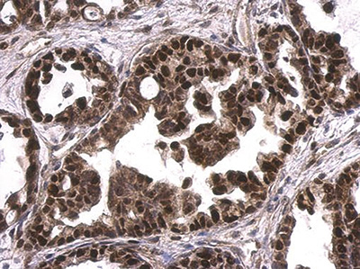 Immunohistochemical