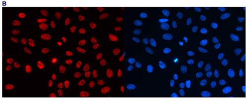 H3K4me2 Antibody validated in Immunofluorescence
