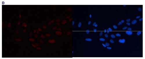 H3K4me2 Antibody validated for Immunofluorescence
