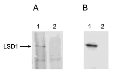 Immunoprecipitation and Western blot analysis