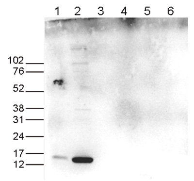 H3R17me2(asym)K18ac Antibody validated in Western Blot