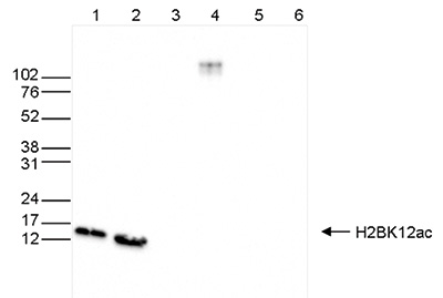 H2BK12ac Antibody validated in Western Blot