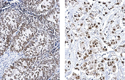 FOXA1 Antibody validated in Immunohistochemistry