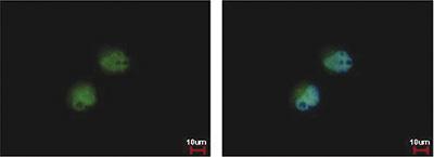 Immunofluorescent analysis