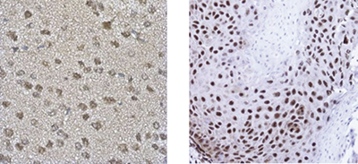 TARDBP Antibody validated in Immunohistochemistry