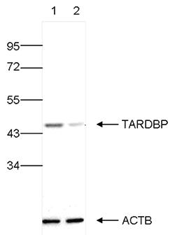 TARDBP Antibody validated in Western Blot