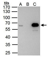 Immunoprecipitation results