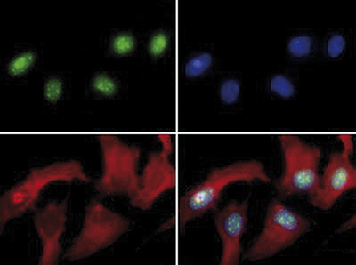 Immunofluorescence results