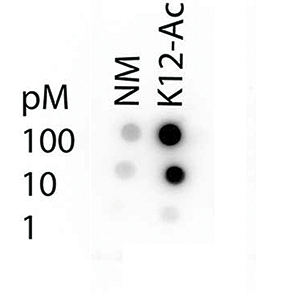Dot blot results