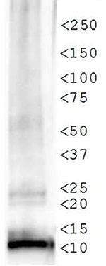 Western blot results
