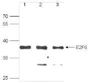 E2F6 Antibody validated in Western Blot