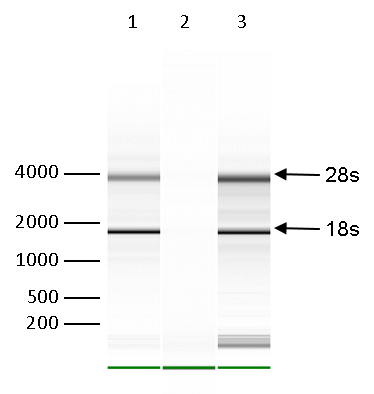 RNA immunoprecipitation