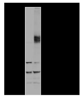 HIF1 alpha WB result