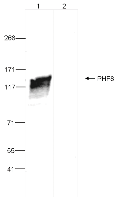 PHF8 Antibody validated in Immunoprecipitation