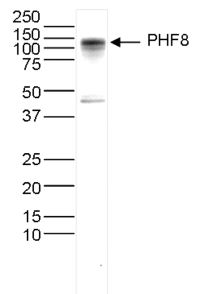 PHF8 Antibody validated in Western Blot